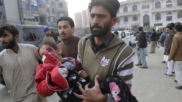 Gadis kecil Pakistan terluka dalam serangan Taliban. Foto: theage.com