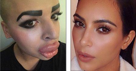 Jordan (kiri) melakukan operasi plastik demi mirip Kim Kardhasian (kanani) (Daily Mail)