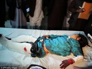 Seorang remaja perempuan menderita luka serius setelah terkena mortir militer Afghanistan