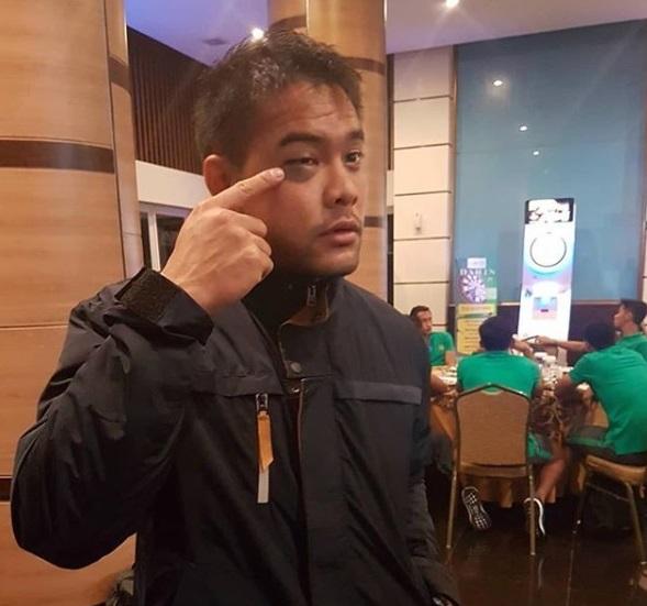 Kondisi cedera kiper Timnas Indonesia U-23, Andritany Ardhiyasa (@mhargianto/instagram)