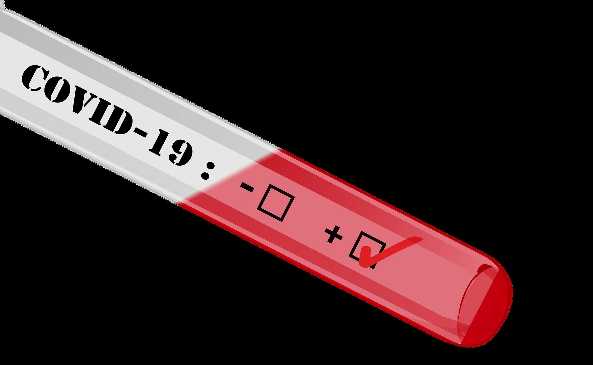 Ilustrasi virus corona. Foto : pixabay